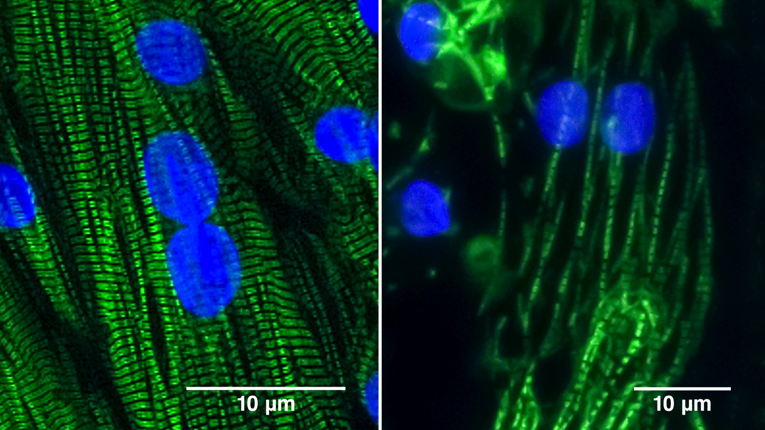 Two images showing heart muscle cells derived from normal human iPS cells, showing the difference between cells lacking the BAG3 protein